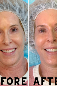 Woman over 50 Hydrafacial Before & After photo