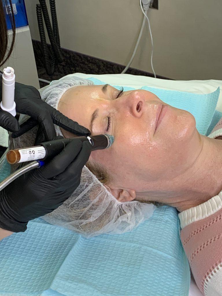 woman undergoing a HydraFacial