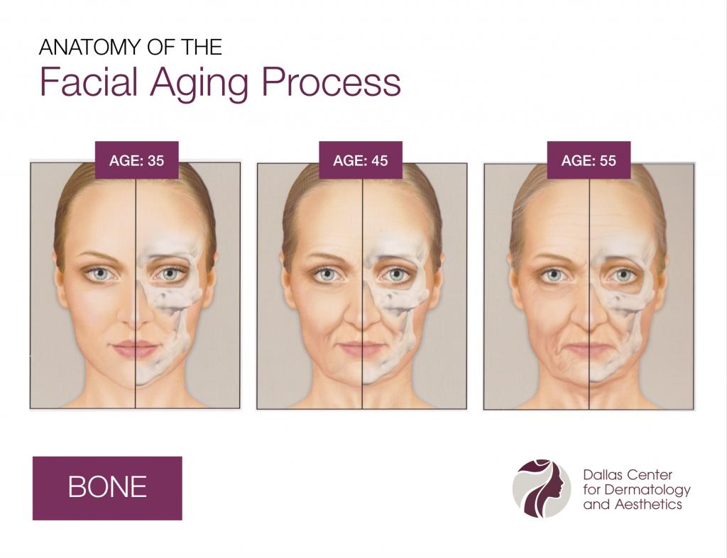 DCDA-Anatomy of the Facial Aging Process_Bone