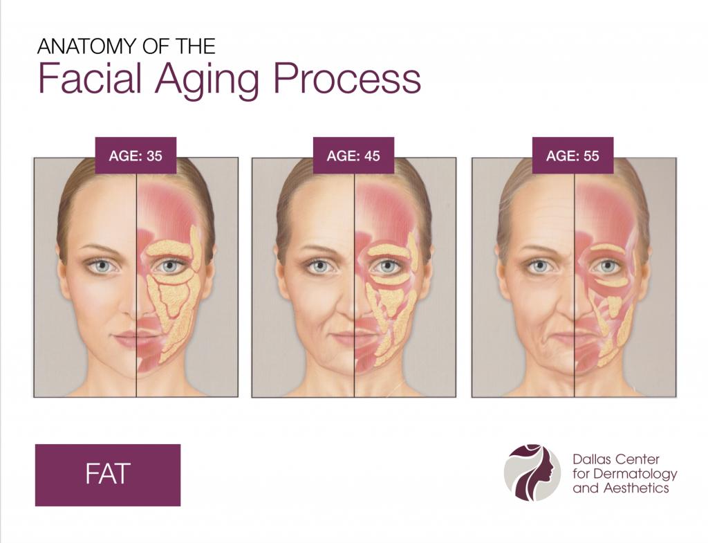 DCDA-Anatomy of the Facial Aging Process_Fat