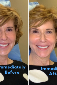 before and after photo of a woman over 50 who had dermal filler in her nasolabial folds chin and lips